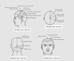 brein-en-zenuwpijn